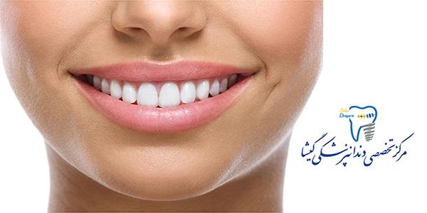 درمان ناهنجاری های فک توسط متخصص ارتودنسی در تهران