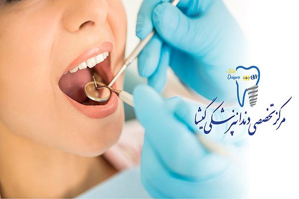 چگونه بهترین دندانپزشک تهران را پیدا کنیم؟