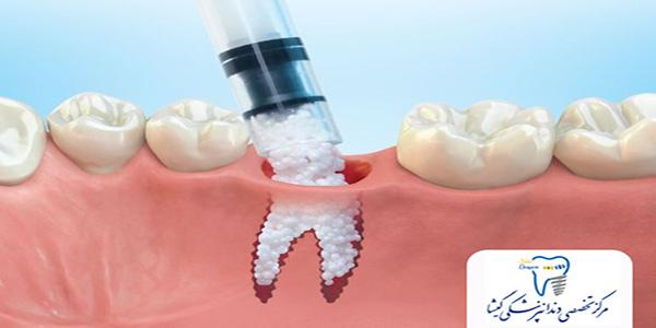مواد پیوند استخوان برای ایمپلنت دندان