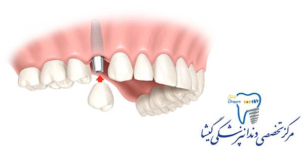 نکات مهم در کاشت ایمپلنت دندان از نظر متخصص ایمپلنت در تهران