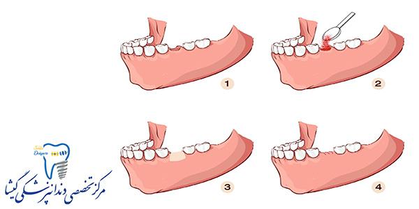 پیوند استخوان برای کاشت ایمپلنت دندان توسط متخصص ایمپلنت در تهران