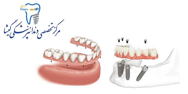 پروتز ثابت متکی بر ایمپلنت های دندانی توسط متخصص ایمپلنت در تهران