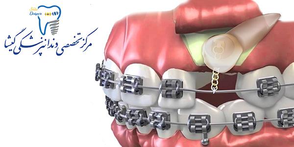 درمان ارتودنسی دندان نهفته توسط متخصص ارتودنسی
