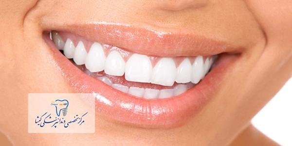 توضیحات متخصص پروتز های دندانی و ایمپلنت