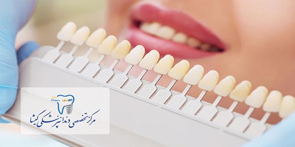 توضیحات متخصص زیبایی دندان در تهران