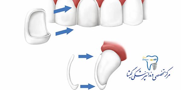 لامینیت سرامیکی توسط متخصص پروتزهای دندانی و ایمپلنت در تهران