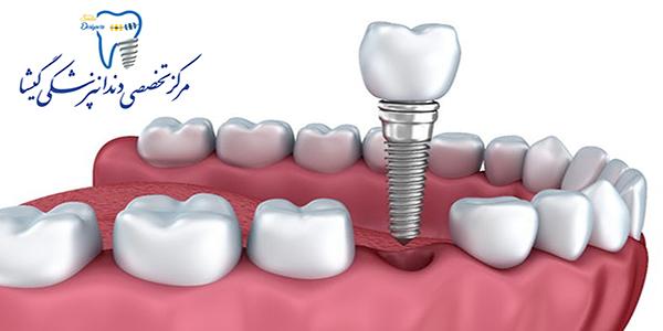 مضرات ، معایب و عوارض ایمپلنت دندانی