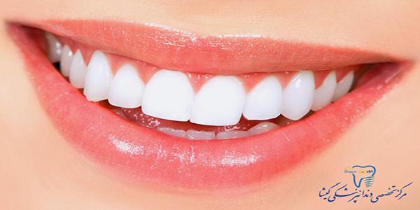 تعریف لبخند زيبا از نظر متخصص ارتودنسی در تهران