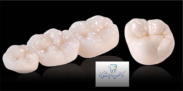 روکش دندان و انواع آن