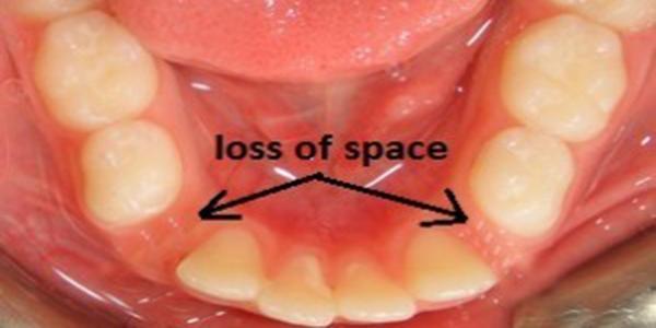 عوارض و مشکلات ارتودنسی از دست دادن دندان شیری