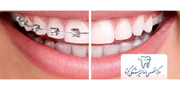 ما متخصص ارتودنسي هستيم(تفاوت متخصص ارتودنسی با دندانپزشک عمومی)